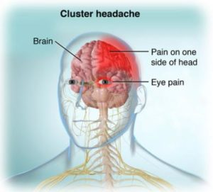 الصداع العنقودي - Cluster headache
